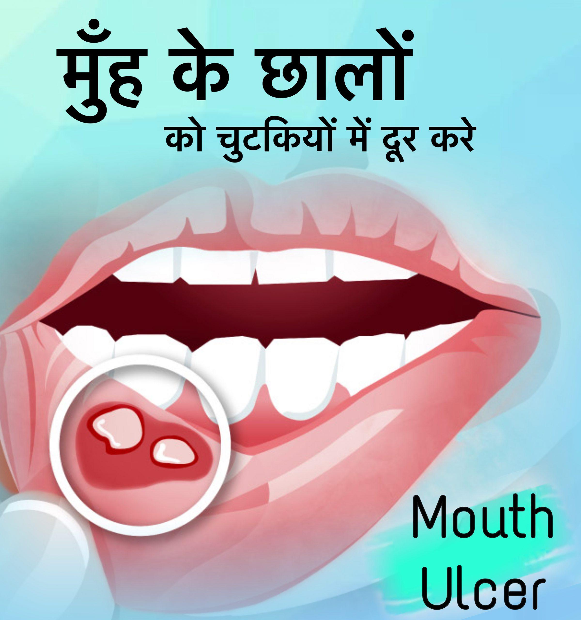 muh ke chhale (mouth ulcer)