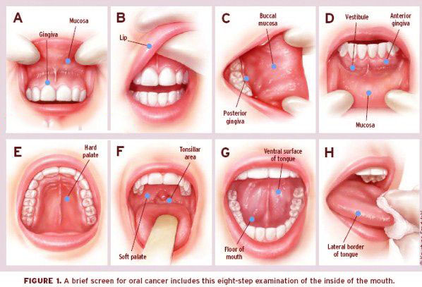 mouth ulcers in hindi