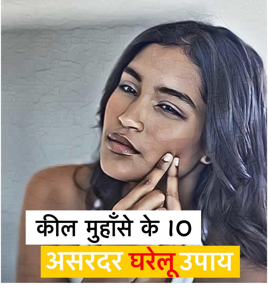 acne in hindi
