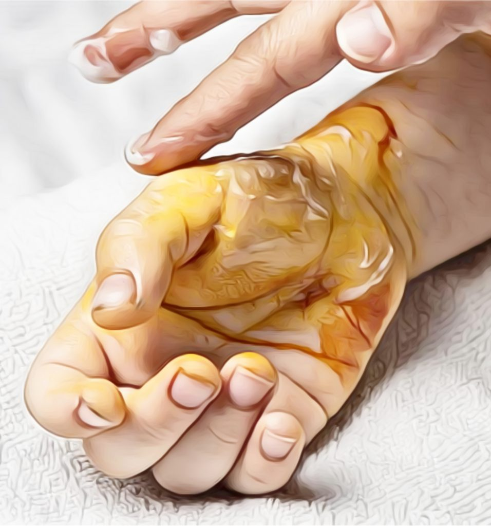 home remedies for burn